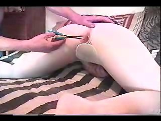 Robin prep for anal