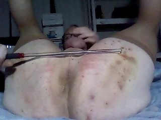Self caning in diaper position