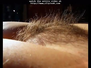 Hairy tubes